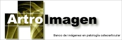 Artroimagen Banco de imágenes en patología osteoarticular