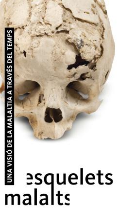 Exposició Esquelets malalts